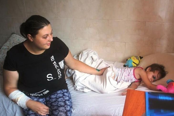 Пострадавшие от обстрела Первомайска Татьяна Дачкевич и ее трехлетняя дочь Ольга сейчас проходят лечение в Луганской республиканской детской клинической больнице. Фото: lug-info.com